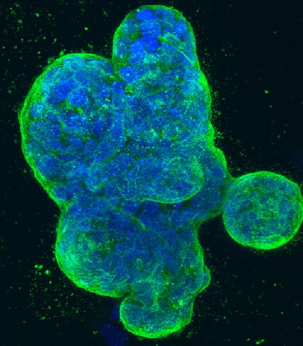 NewMeasure-BRCA-dish-NIH[1]
